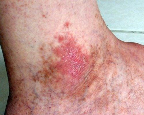 Simptome ale cancerului de piele foarte vizibile