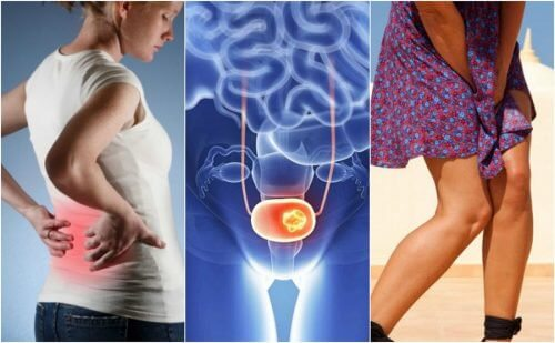 Cancerul de vezică urinară: 7 simptome