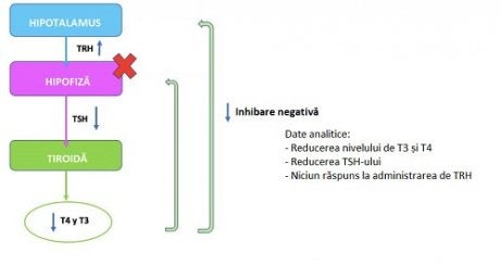 Legatura dintre tiroida si kilogramele in plus
