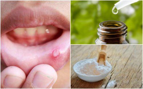 Tratează aftele bucale cu 6 remedii naturale