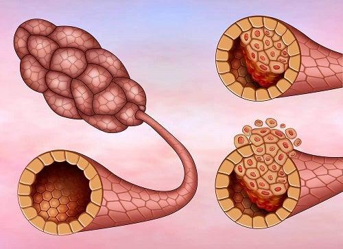 Carcinomul ductal pe lista de tipuri de cancer mamar