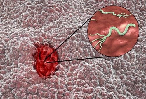 Ce este omeprazolul în vindecarea bolilor