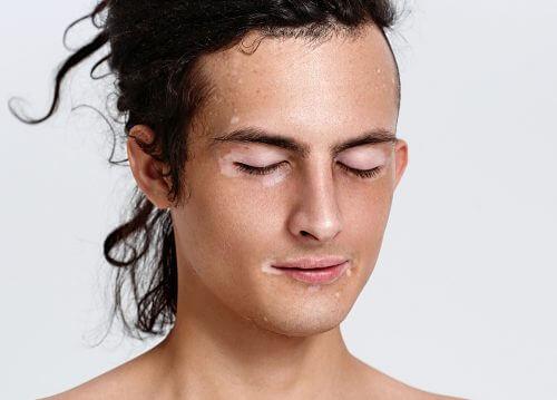 Ce este vitiligo și care sunt cauzele apariției sale