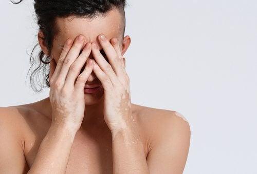 Ce este vitiligo și care sunt simptomele bolii