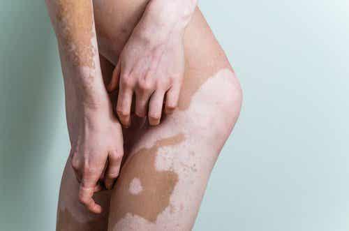 Ce este vitiligo și care sunt cauzele și tratamentul său?