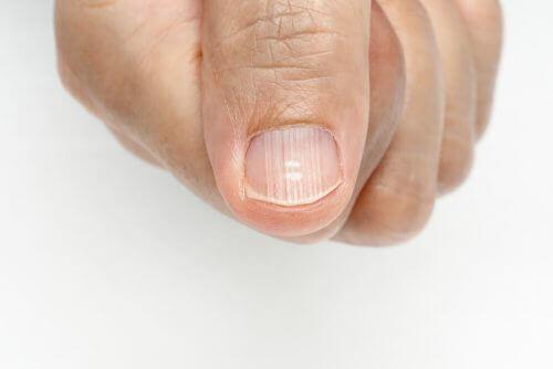 Eliminarea dungilor de pe unghii în funcție de cauză