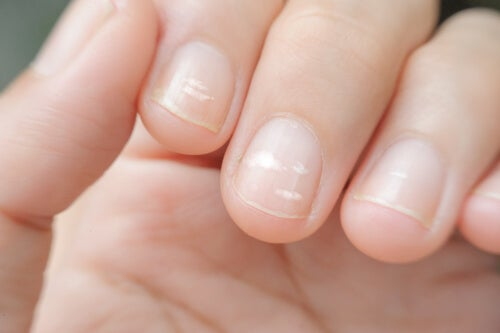 Eliminarea dungilor de pe unghii cu zinc