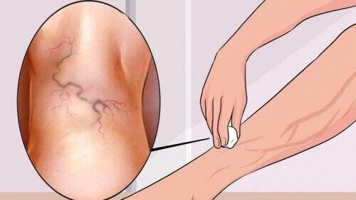 exerciții pe picioare de la varicoză)