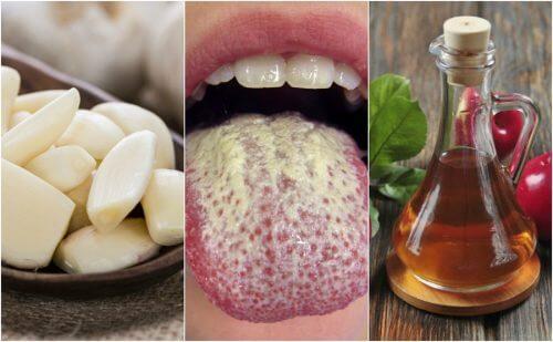 6 remedii naturiste împotriva Candidei