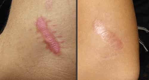 5 remedii naturiste pentru cicatricile cheloide