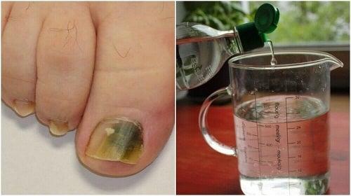 Remediu naturist pentru ciuperca unghiei
