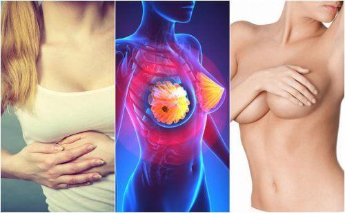 9 simptome ale cancerului mamar