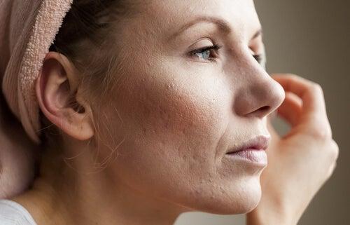 Simptome ale nivelului ridicat de cortizol pe pielea unei femei