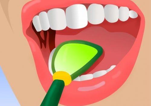 5 trucuri pentru combaterea respirației urât mirositoare