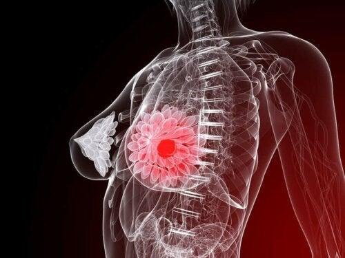 Tumoare la nivelul sânului unei femei