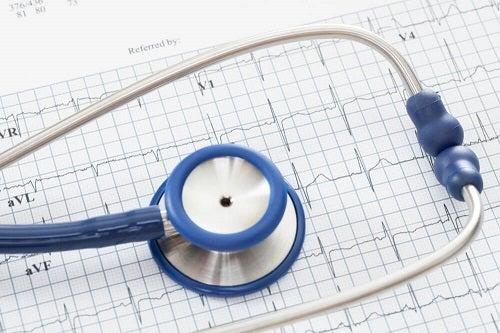 Cauze neobișnuite ale palpitațiilor precum afecțiunile cardiace din trecut