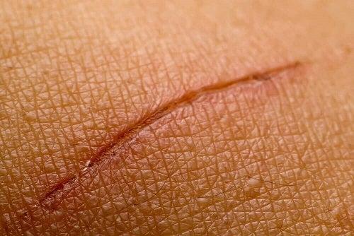 Beneficiile gelatinei de a vindeca rănile