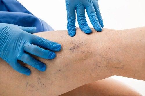 Cum să aplici un remediu pentru varice cu aloe vera pe picioare
