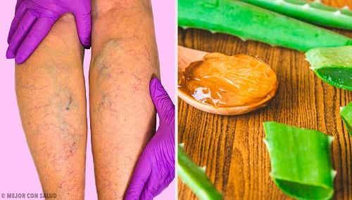 Remediu pentru varice cu aloe vera