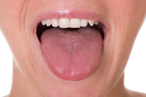 5 simptome inițiale ale cancerului limbii
