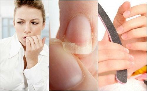 8 motive pentru care ai unghiile fragile