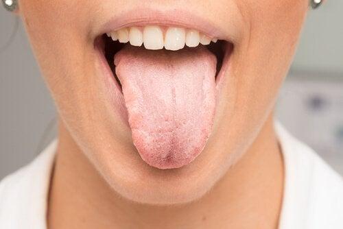 Nevoia de remedii naturale pentru limba albicioasă care ajută la curățarea gurii