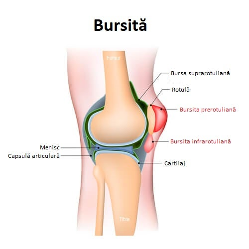 Tot ce trebuie să știi despre bursită și complicațiile ei