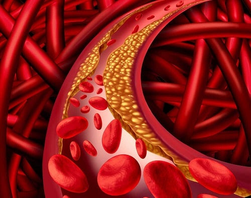 Arteră înfundată de alimente bogate în colesterol rău