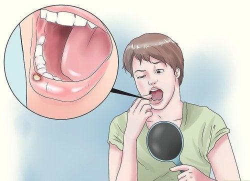 8 remedii naturiste pentru aftele bucale