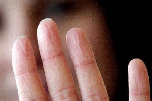 Probleme de sănătate indicate de mâini care transpiră excesiv
