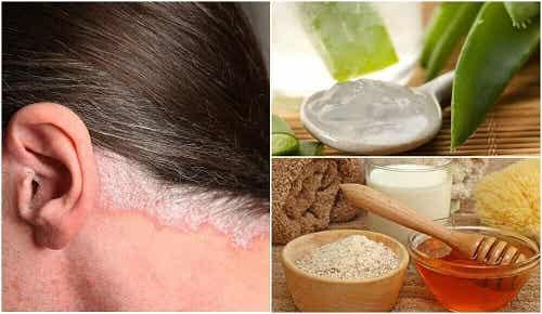 5 remedii naturale pentru psoriazisul scalpului