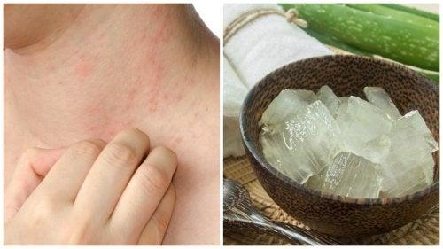 7 remedii pentru alergia la căldură