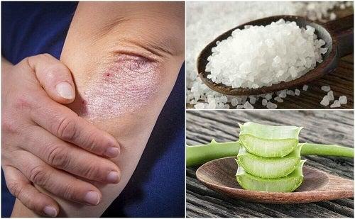 5 remedii naturiste pentru ciupercile pielii