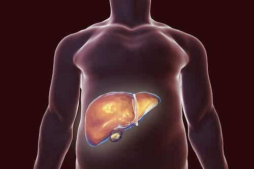 3 remedii naturiste pentru detoxifierea ficatului