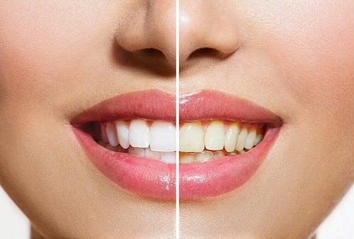 Produse naturale pentru albirea dinților acasă