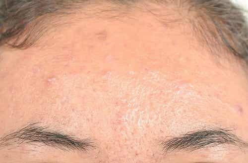 6 remedii naturiste pentru dermatita seboreică