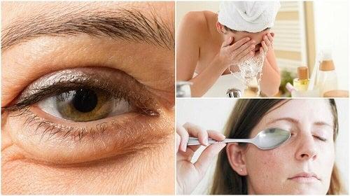 6 remedii pentru diminuarea pungilor de sub ochi