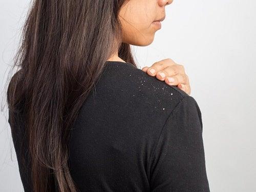Femeie ce are nevoie de rețete de șampon natural care elimină mătreața