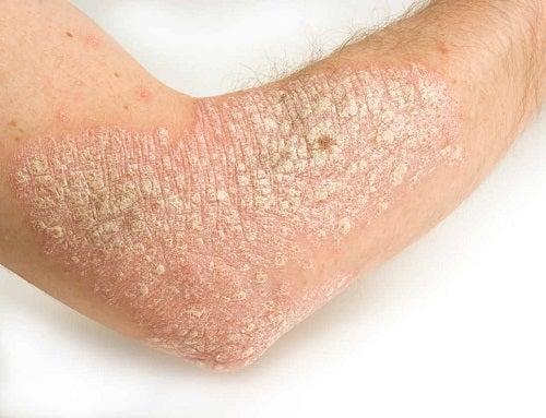 Folosește sarsaparilla pentru tratarea psoriazisului de pe brațe