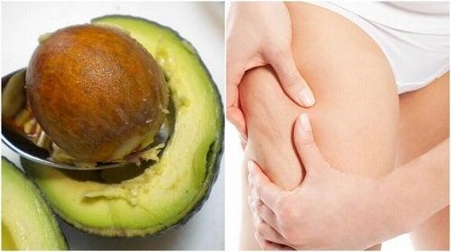 Două tratamente anticelulită cu sâmburi de avocado