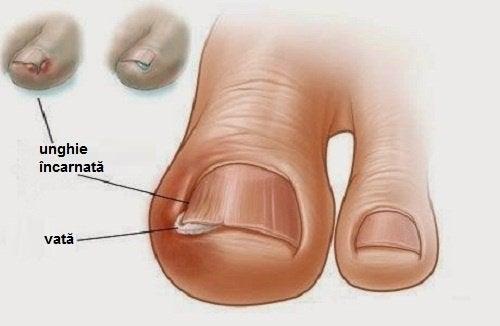 Tratamente naturale pentru problemele unghiilor precum creșterea lor în carne