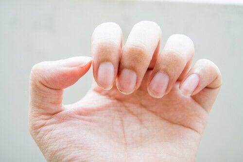 Tratamente naturale pentru problemele unghiilor fragile