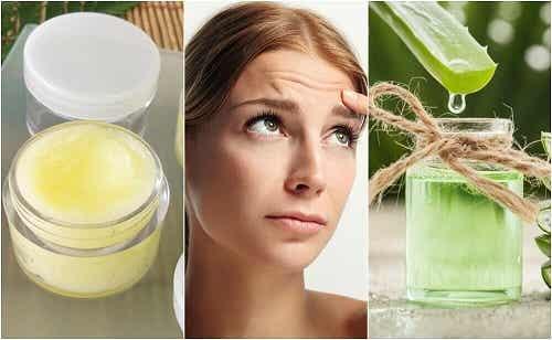 5 tratamente naturale pentru ridurile de pe frunte