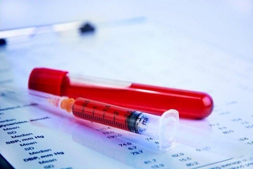 Beneficii ale curcumei în timpul menopauzei precum efectul anticoagulant