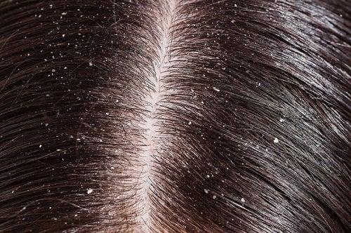 Beneficii ale rozmarinului pentru păr ce elimină mătreața