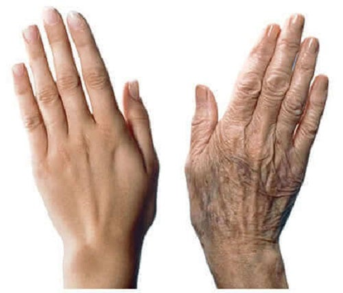 Sfaturi pentru a încetini îmbătrânirea mâinilor