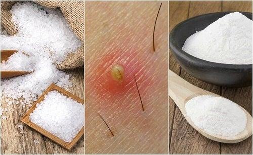 5 soluții naturale pentru firele de păr crescute sub piele