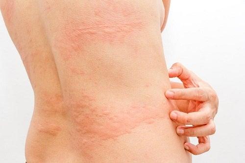 Descoperă 3 remedii naturiste pentru urticarie