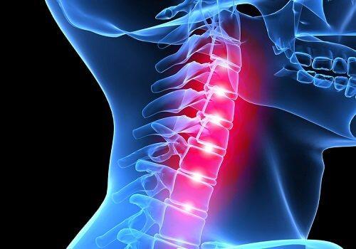 Radiografie revelând efecte ale stresului asupra coloanei vertebrale