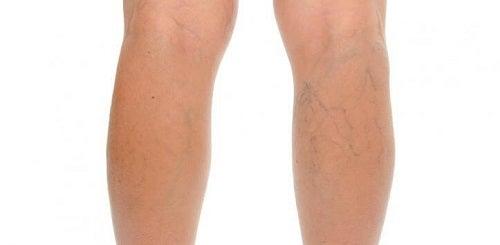 Remedii naturiste pentru a diminua celulita de pe picioare